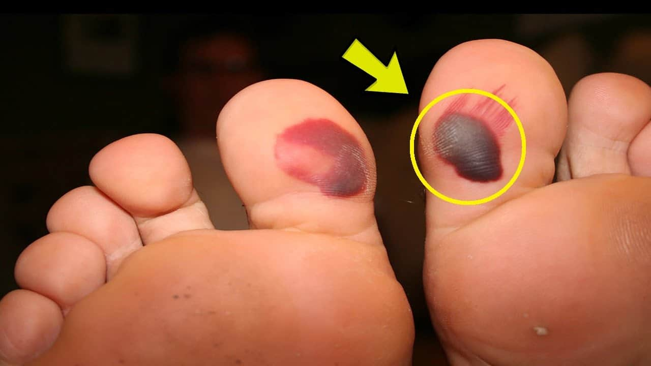 How To Get Rid Of A Blister On Your Toe